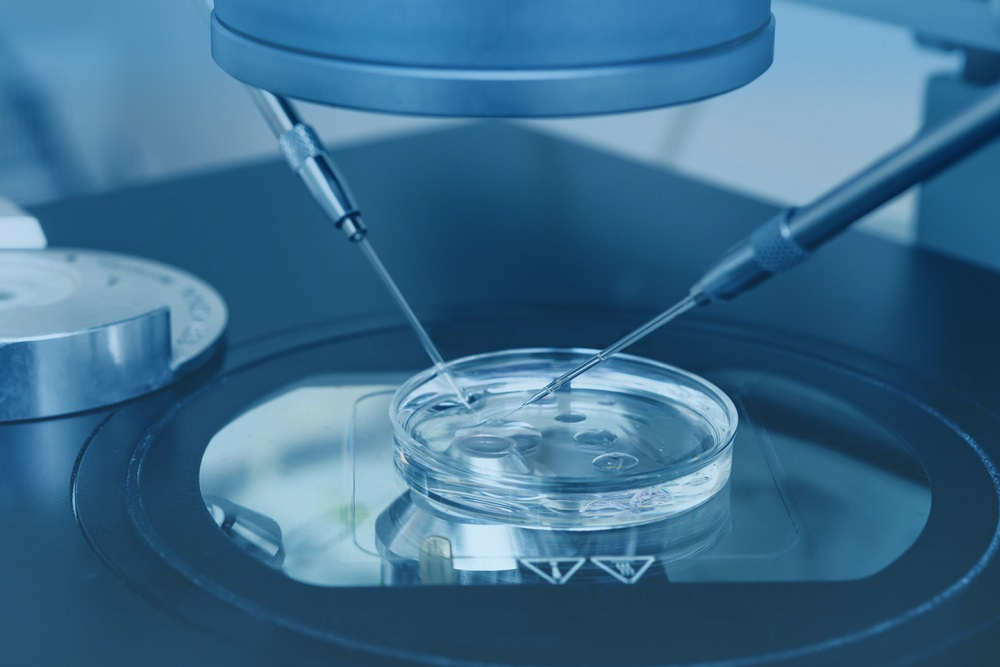 assisted-hatching iaso ivf center cyprus